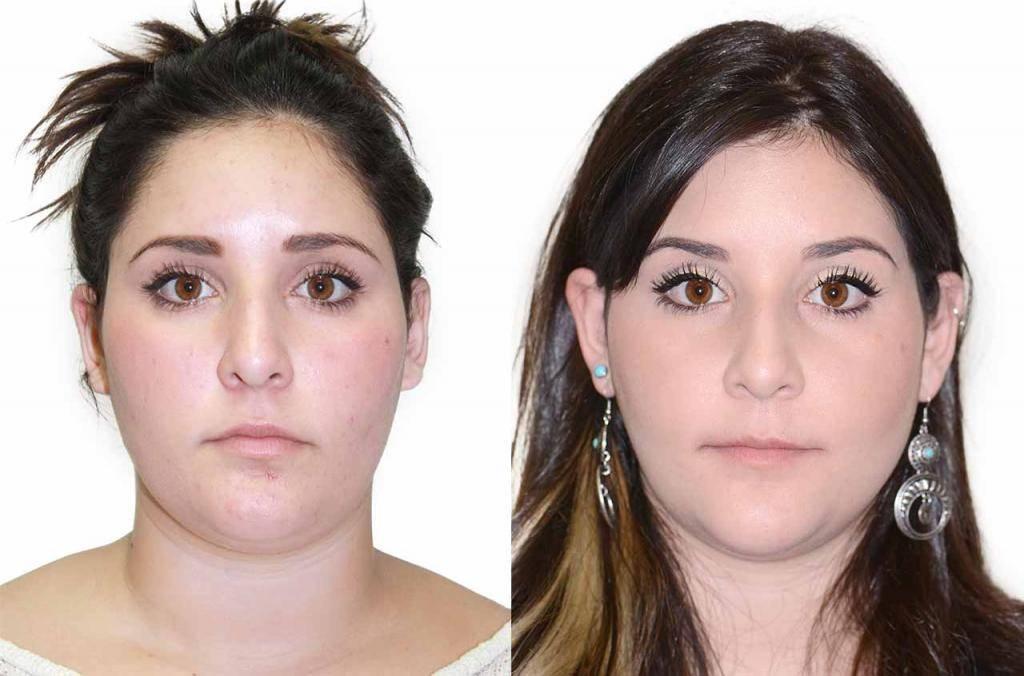 Асимметрия лица: причины и лечение у взрослых | исправить несимметричное лицо без операций в клинике орто-артель