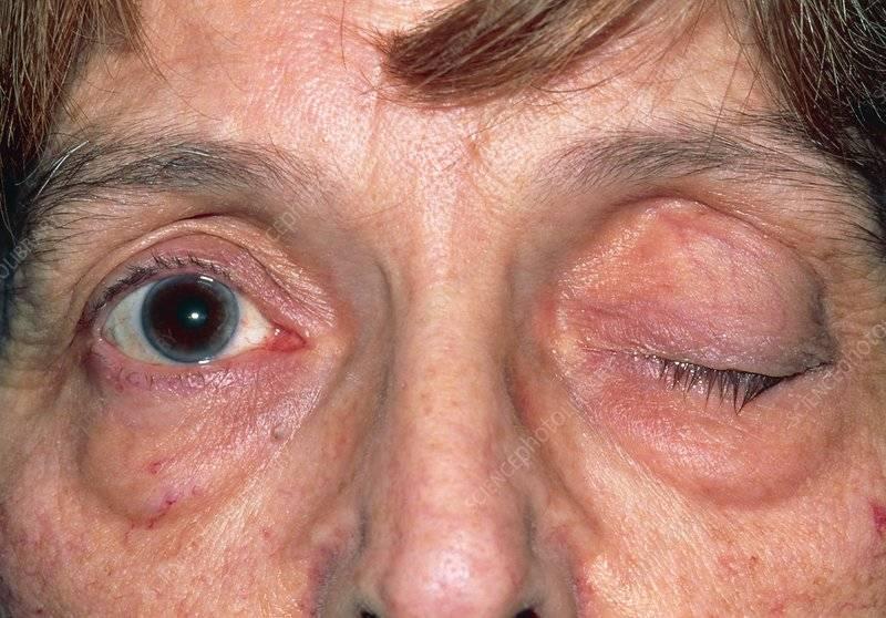 Блефароспазм: причины, симптомы, диагностика, лечение