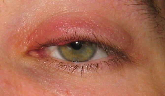 Грибковый конъюнктивит - лечение, фото, симптомы, причины
