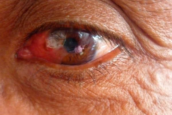 Рак глаз: первые симптомы при онкологии века
