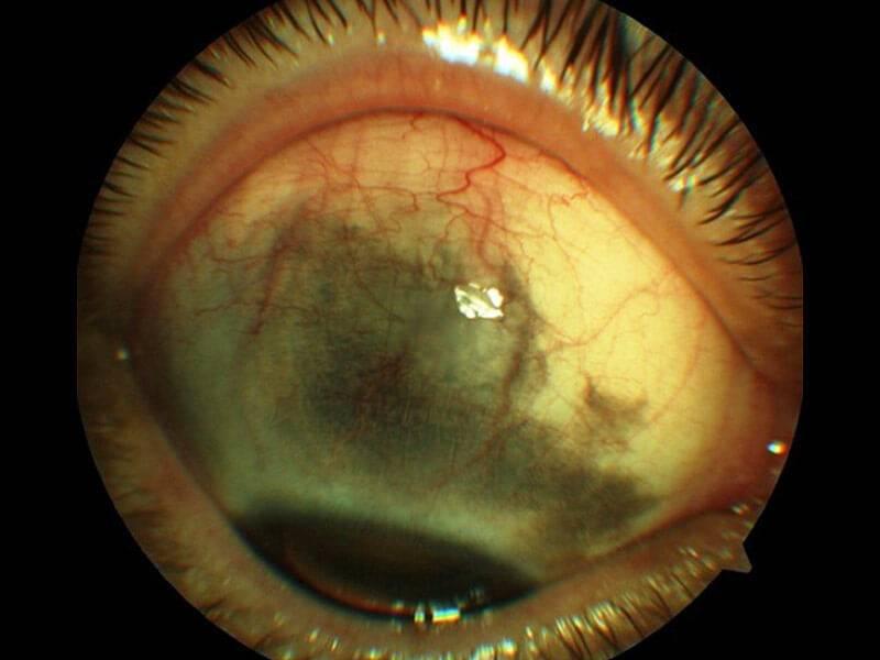 4 стадии глаукомы: когда еще возможно восстановить зрение?