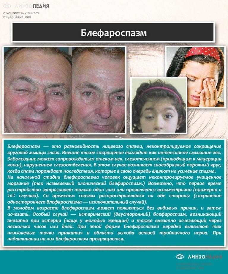 Блефароспазм - причины, симптомы, лечение блефароспазма верхних век | медицинский портал spacehealth