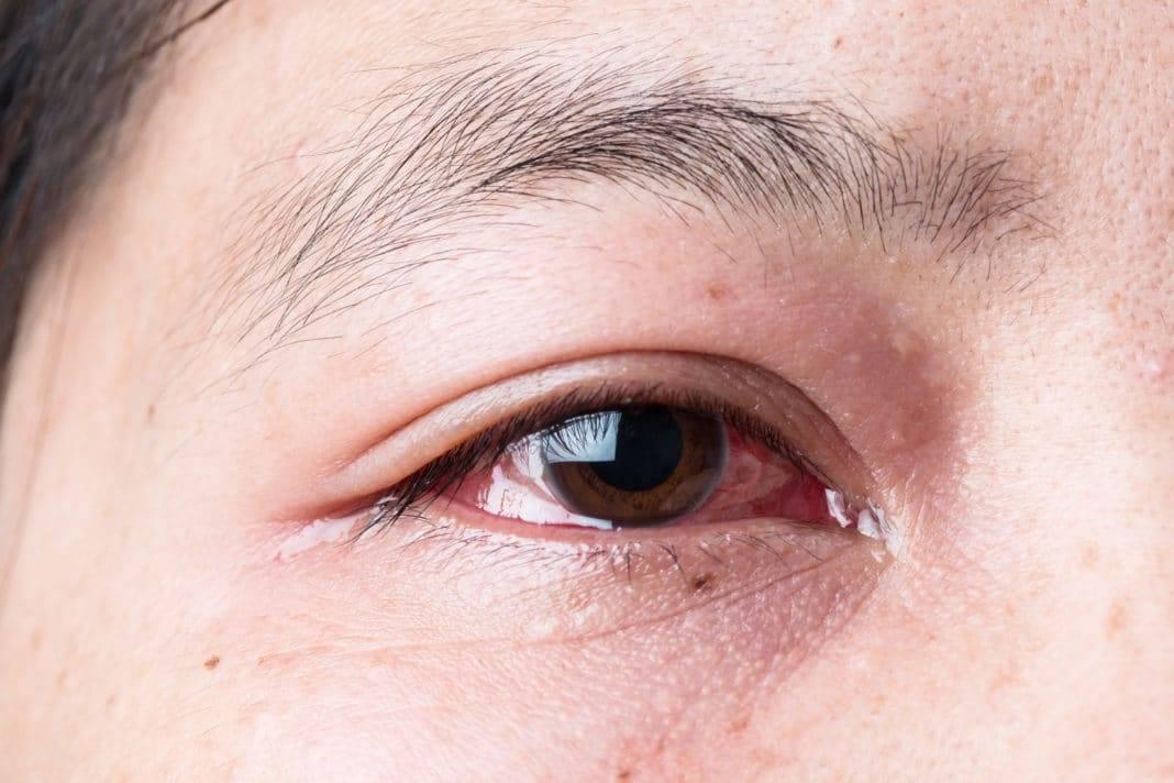 Вены на лице у ребенка – с чем связаны причины появления