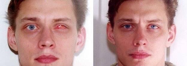 Энуклеация – суть и секреты операции по удалению глаза