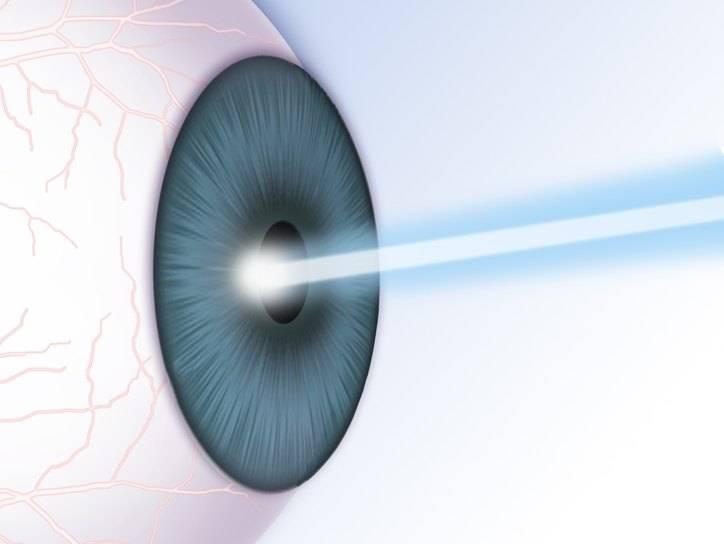 Лазерная коррекция зрения | мнтк «микрохирургия глаза» им. акад. с.н. федорова
