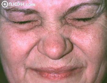 Блефароспазм что это фото лечение симптомы причины
