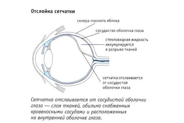 Отслойка стекловидного тела глаза: симптомы, лечение oculistic.ru отслойка стекловидного тела глаза: симптомы, лечение