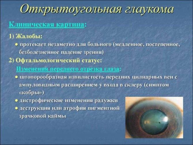 Отличия открытоугольной и закрытоугольной глаукомы