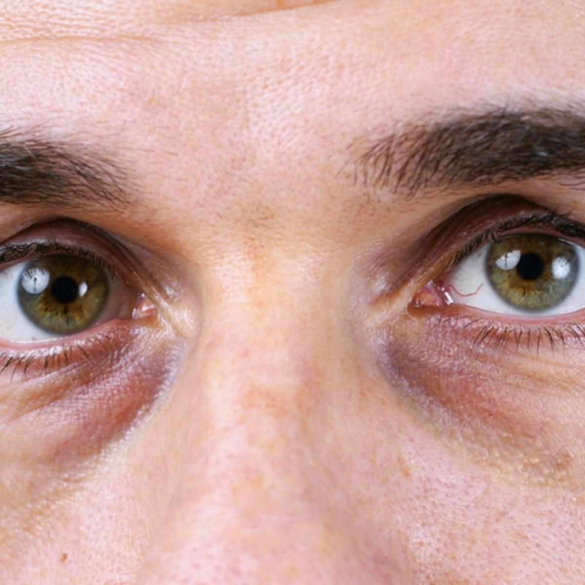 Белые пятна под глазами: причины, лечение oculistic.ru белые пятна под глазами: причины, лечение