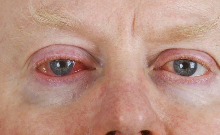 Хемоз конъюнктивы: причины, симптомы, лечение oculistic.ru хемоз конъюнктивы: причины, симптомы, лечение
