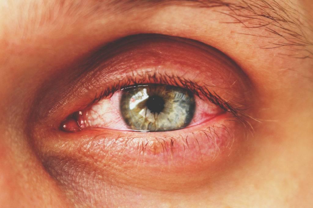 Почему красные глаза при простуде у ребенка и взрослого