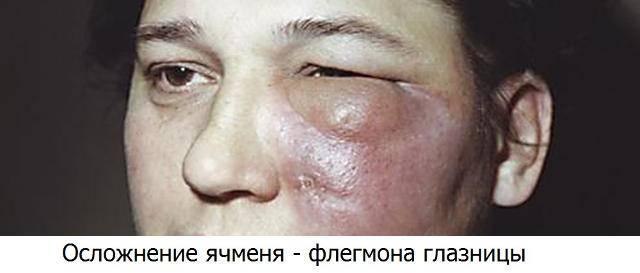Гнойник на глазу: симптомы, причины, фото, лечение воспаления на внутренней и наружной стороне века, виды (ячмень, фурункул, халязион, абсцесс, дакриоцистит)