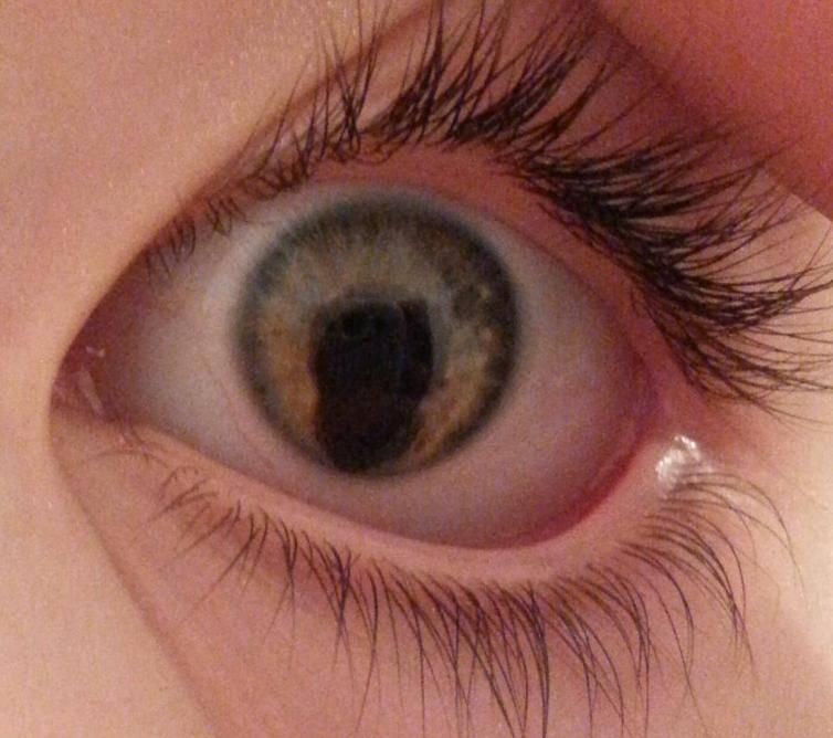 Колобома - это что такое, лечение колобомы радужки глаза