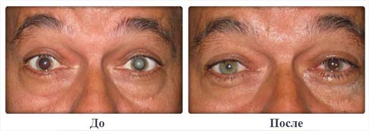 Как лечить глаукому без операции — народная и консервативная терапии