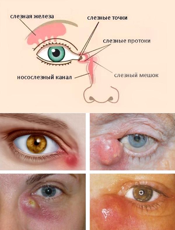 Хронический дакриоцистит у взрослых - признаки, диагностика и методы терапии | полезно знать | healthage.ru