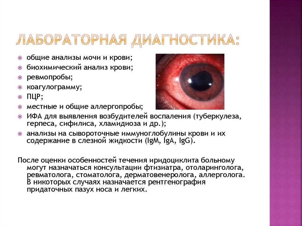 Иридоциклит (передний увеит). симптомы, причины, диагностика и лечение заболевания