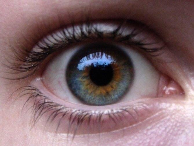 Гетерохромия глаз. почему может появляться разный цвет глаз у человека?