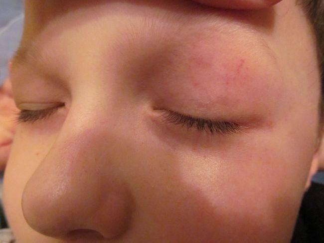 Красные точки под глазами у ребенка: причины, что делать