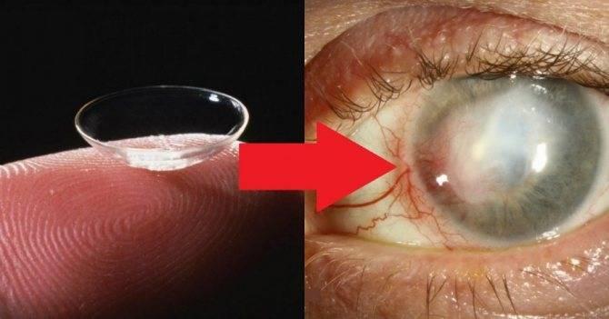 Как часто нужно менять линзы контактные для глаз: как понять, когда испортились, как узнать, что пора купить новые, сколько надо носить оптику для коррекции зрения?