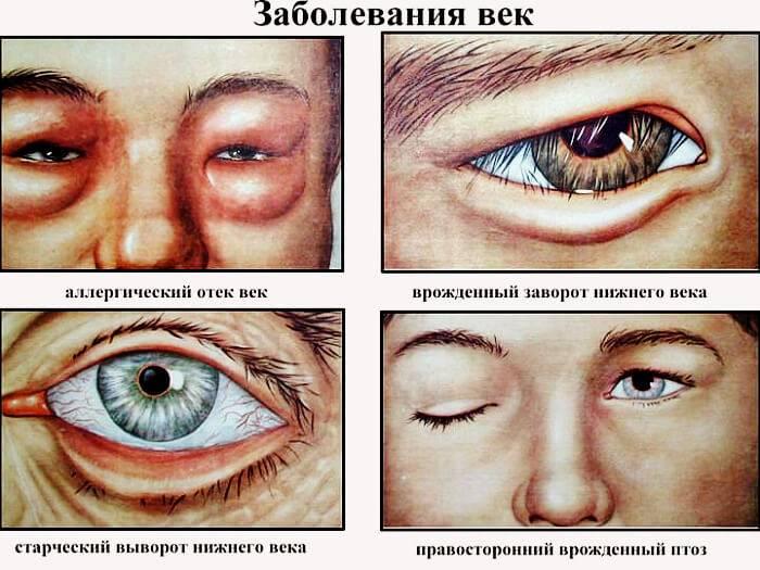 """Болезни глаз: разновидности и способы лечения - """"здоровое око"""""""