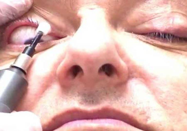 Как делать массаж век при блефарите: все техники