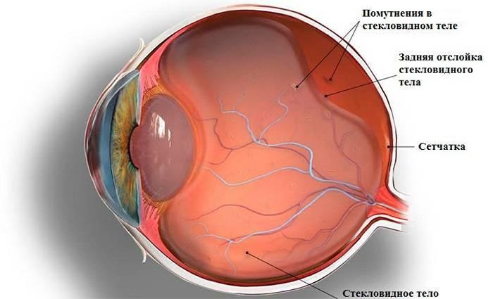 Деструкция стекловидного тела: что это такое, причины, симптомы дст, как лечить плавающие и нитчатое помутнения одного или обоих глаз, можно ли остановить изменения и вернуть зрение