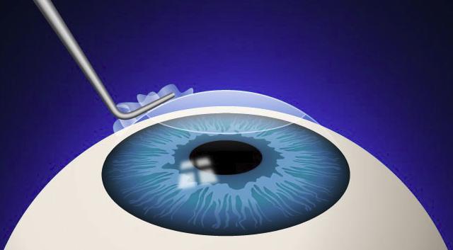 Прямое сравнение методов лазерной коррекции миопии или за что вы платите при выборе relex smile / клиника офтальмологии доктора шиловой corporate blog / habr