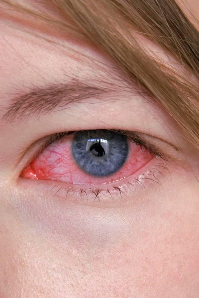 Герпес на глазу: фото на глазах, симптомы на веке, под глазом, простуда глаза