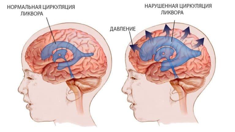 Внутриглазное давление - симптомы и лечение, профилактика!