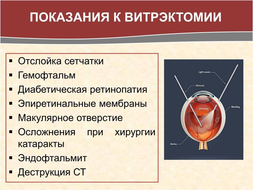 Современная инвазивная витрэктомия операция на глаза клиника расческова