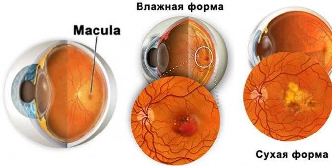 Возрастная макулодистрофия (вмд)