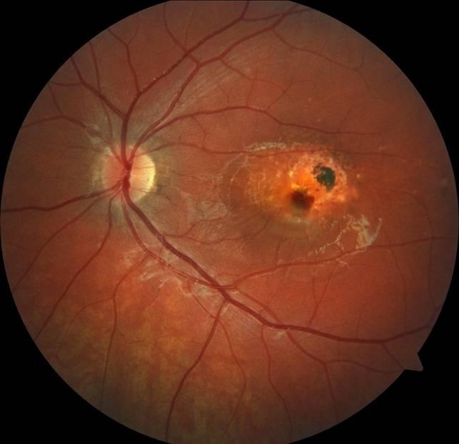 Разрыв сетчатки глаза: причины, симптомы, лечение oculistic.ru разрыв сетчатки глаза: причины, симптомы, лечение