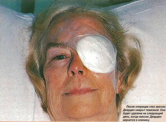 Удаление халязиона: лазерное и хирургическое иссечение, восстанавительный период после операции