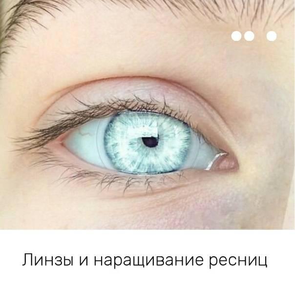 Основные причины, почему после наращивания ресниц глаза стали красными. лечение, профилактика и рекомендации