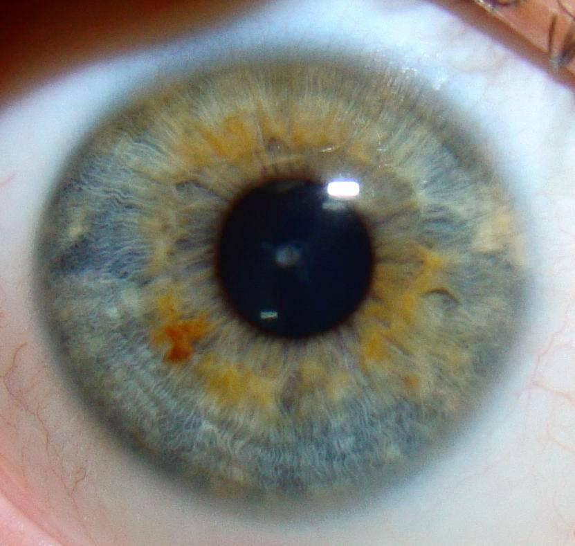Что означает черная точка на радужке глаза. иридодиагностика - схема радужной оболочки глаза и признаки заболеваний. сигнал от почек