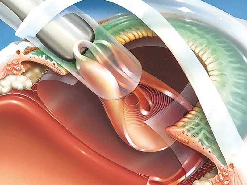 Факоэмульсификация катаракты лазером и ультразвуком, осложнения