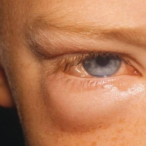 Аллергический отек глаз: причины развития, симптомы и лечение