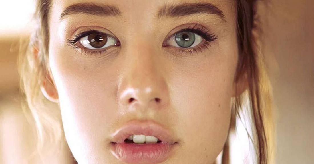 Как называется когда глаза разного цвета у человека или животного