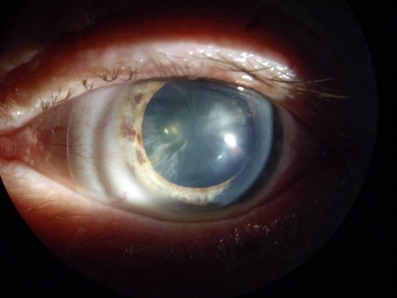 Помутнение хрусталика глаза — причины, симптомы и лечение помутнения