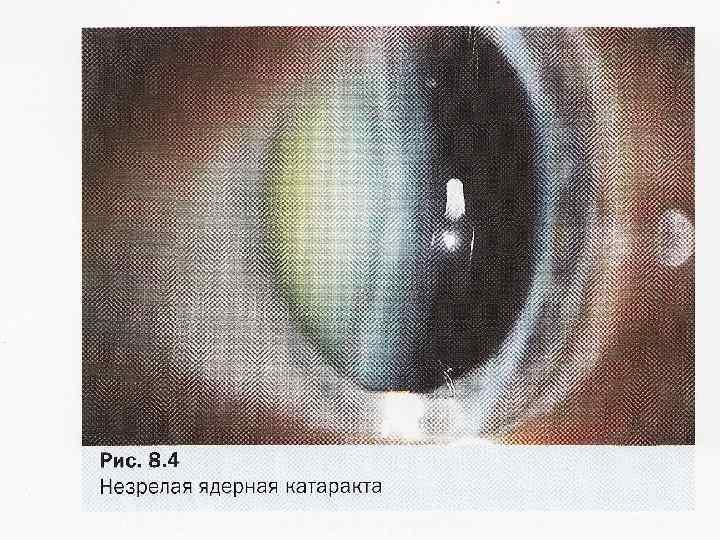 Классификация катаракты и характеристика основных типов