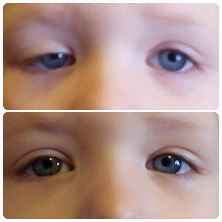 Птоз верхнего века у ребенка лечение без операции