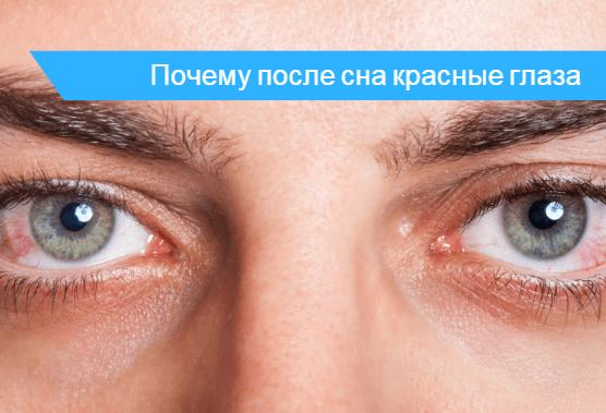 Все возможные причины красных глаз после сна