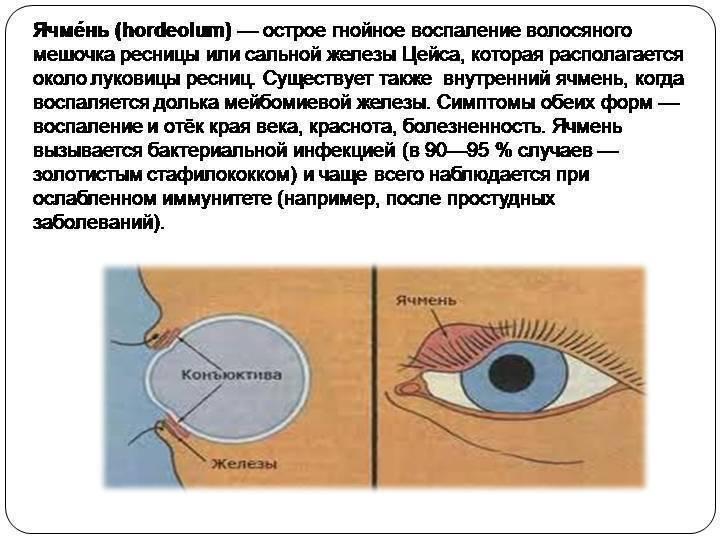 """Как избавиться от ячменя на глазу: симптомы болезни, причины и методы лечения - """"здоровое око"""""""
