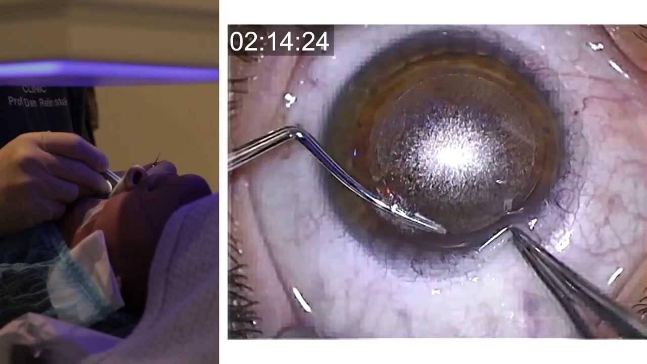 Лазерная коррекция зрения: рекомендации и противопоказания. со скольки лет можно делать операцию по коррекции близорукости и до скольки? может ли ухудшиться зрение при беременности?