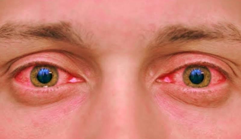 Как убрать красные глаза на фото | способы убрать с фото эффект красных глаз
