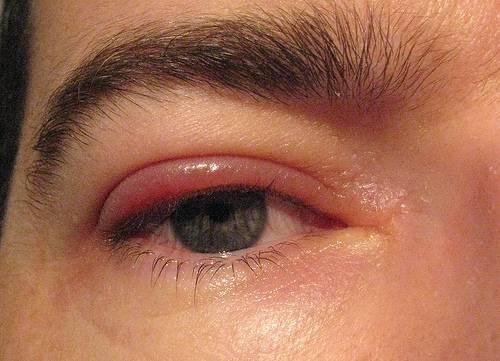 В чем выражается мейбомиевый блефарит? отличительные особенности, основные симптомы и лечение заболевания