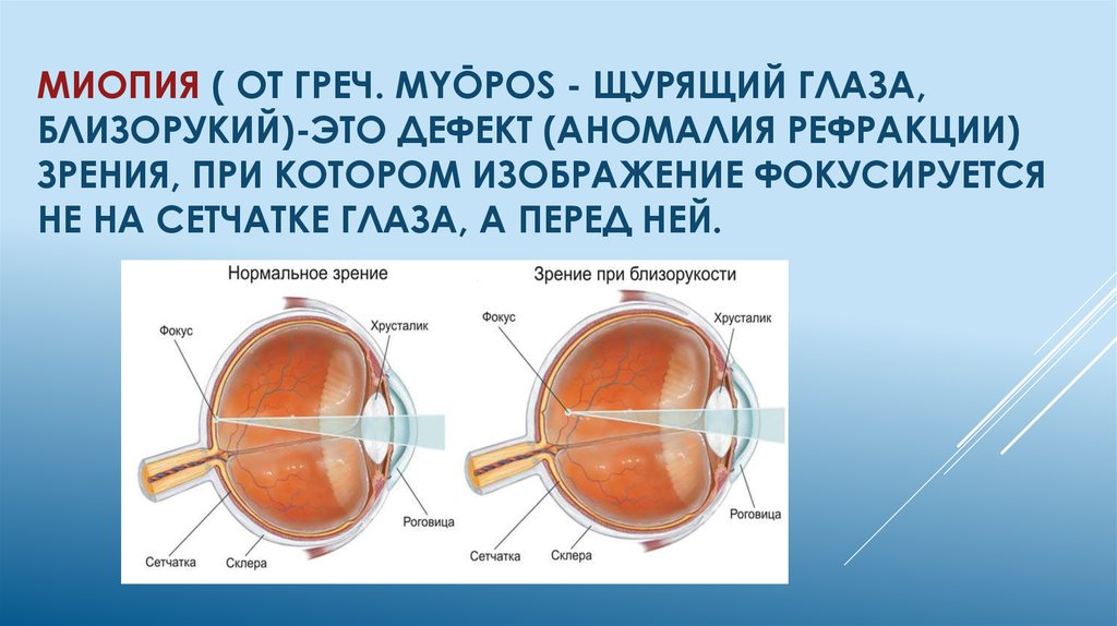 Миопия (близорукость) высокой степени — причины и лечение