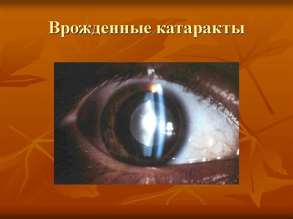Причины, симптомы, методы излечения врожденной и других видов катаракты у детей