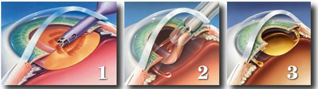 Факоэмульсификация катаракты - что это за операция и как её проводят oculistic.ru факоэмульсификация катаракты - что это за операция и как её проводят