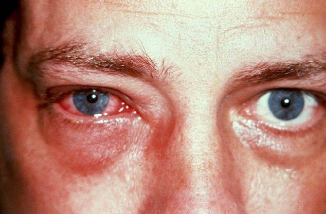 Как отличить острый конъюнктивит: симптомы и эффективное лечение